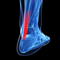 Learn How to Recover from Achilles Tendinitis