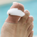 What are Ingrown Toenails?