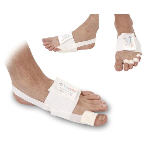 how to put a night splint on your bunions