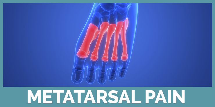 See our guides about metatarsal pain