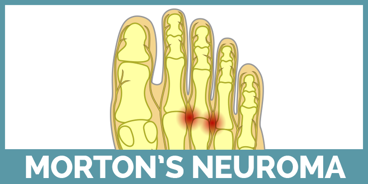 Learn about Morton's Neuroma with our guides