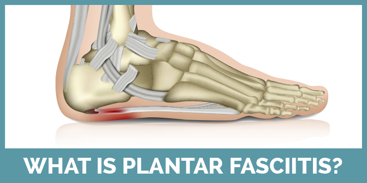 Learn about what plantar fasciitis is