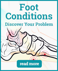 Find Your Foot Condition with Shoe Insoles!