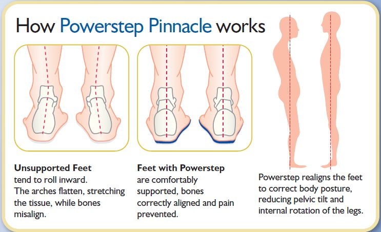 Benefits of the Powerstep Pinnacle Insoles