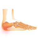 Heel Pain Cures: What You Can Do To Help With Heel Pain