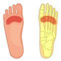 Best Insoles for Ball of Foot Pain