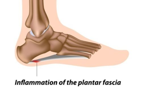 Plantar fasciitis is caused by inflammation of the plantar fascia