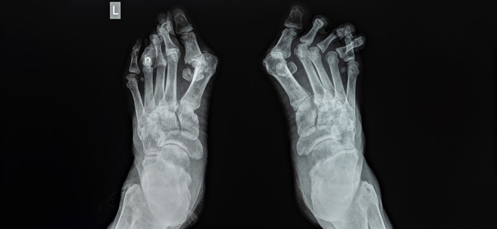 Pedag: Treating Bunions Without Surgery
