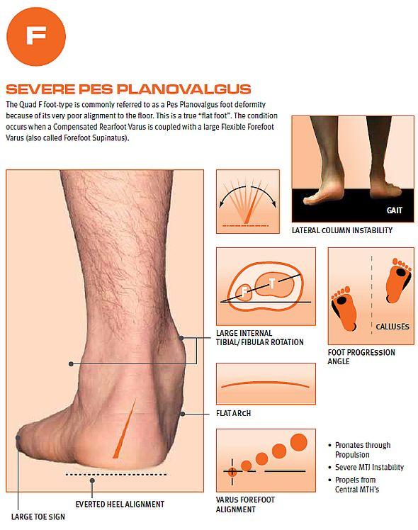 Quadrastep F Flat Foot Orthotic Insoles